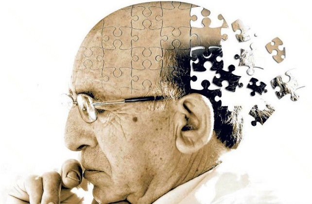 Alzheimer Disease Cure and Treatment in Naihati  West Bengal