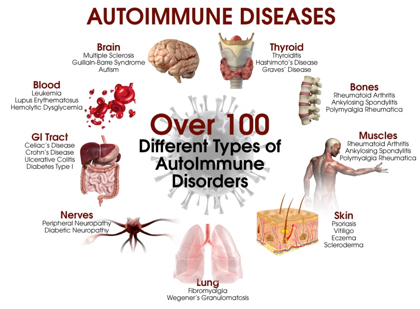 Autoimmune Disease Cure and Treatment in Dhanbad  Jharkhand