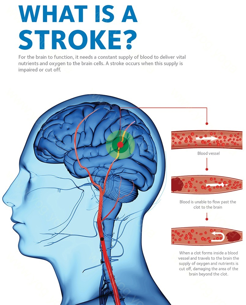 Brain Stroke Cure and Treatment in Kharagpur  West Bengal