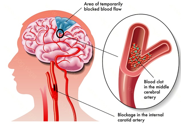 Brain Stroke Cure and Treatment in Raiganj  West Bengal