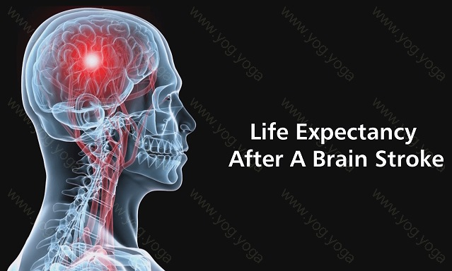 Brain Stroke Cure and Treatment in Titagarh  West Bengal