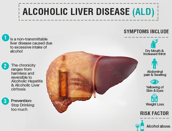 Liver Disease Cure and Treatment in Chandannagar  West Bengal