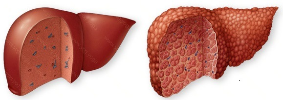 Liver Disease Cure and Treatment in English Bazar  West Bengal