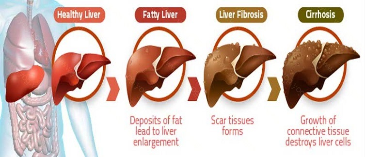Liver Disease Cure and Treatment in Ratlam  Madhya Pradesh