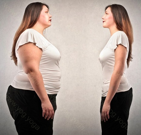 Obesity Cure and Treatment in Jamnagar  Gujrat