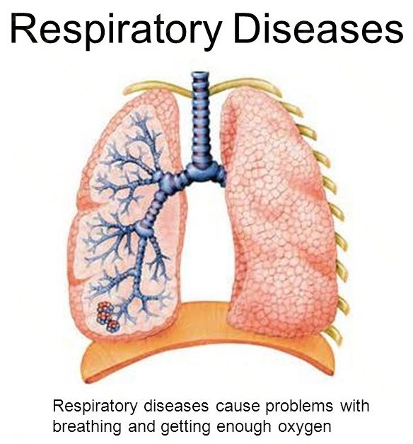 Respiratory Disease Cure and Treatment in Muktsar  Punjab