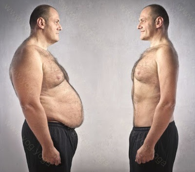 sure shot cure and treatment of obesity